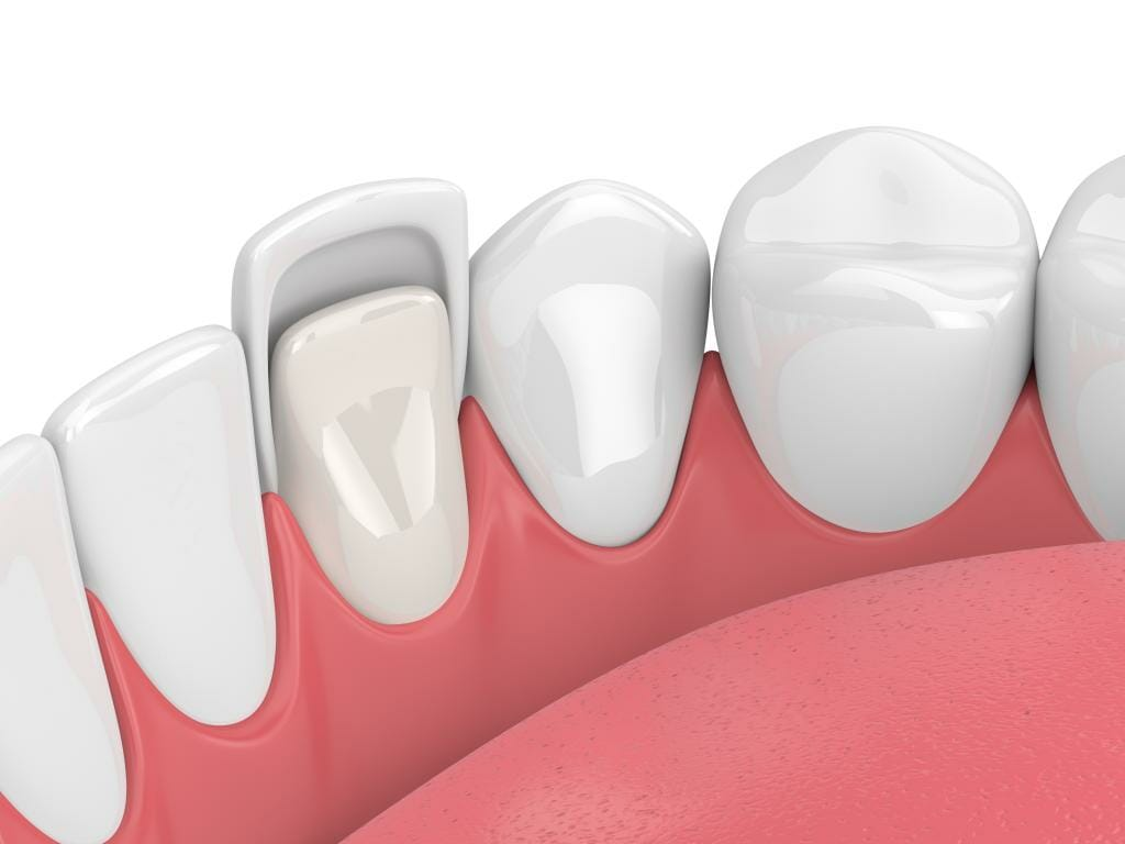 Diagram of dental veneers