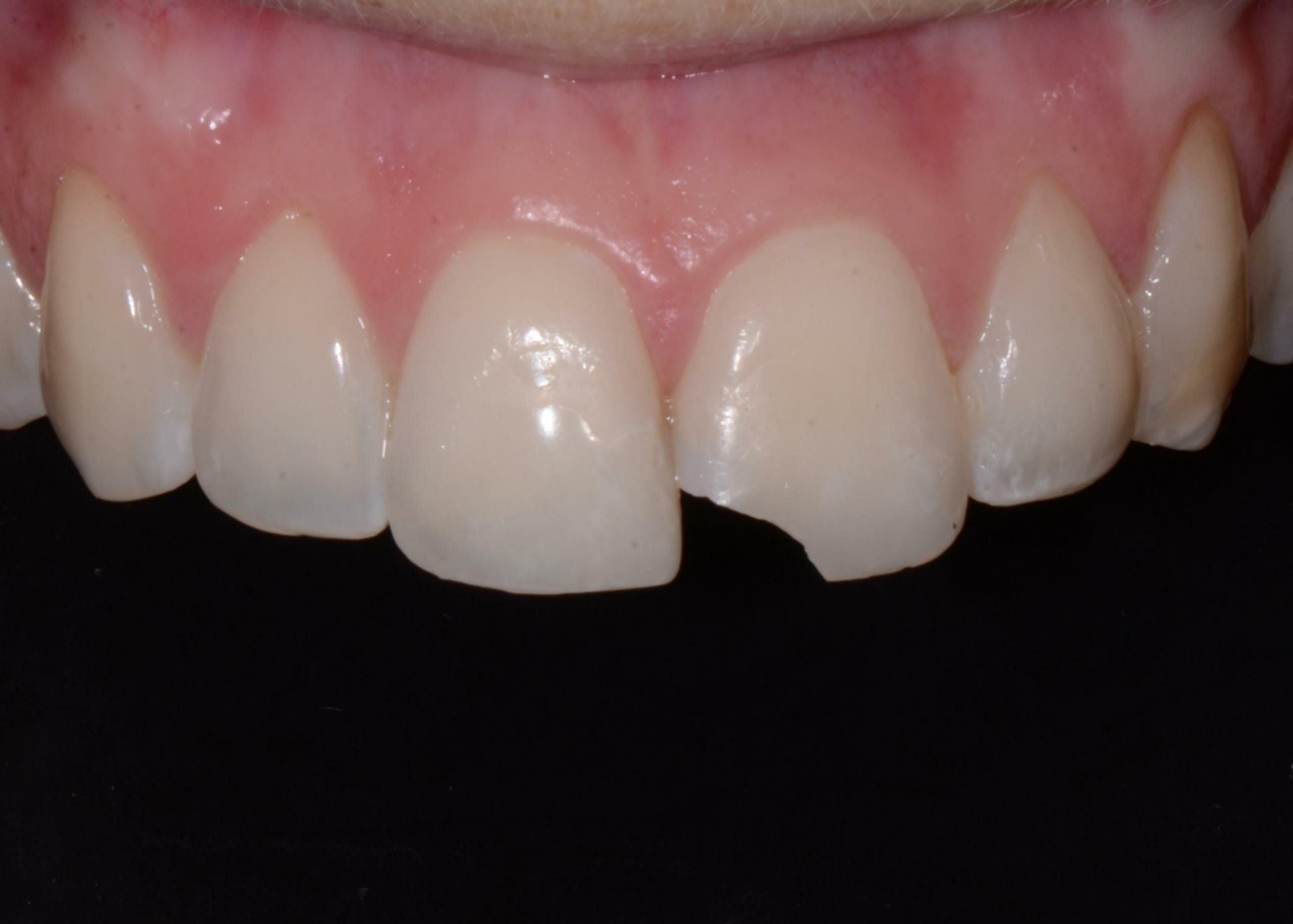 closeup of chipped tooth